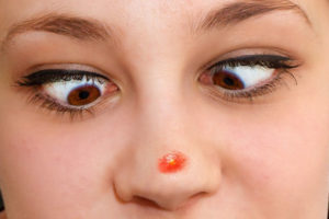 mawala ang pimples