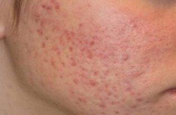 Paano mawala ang pimple marks