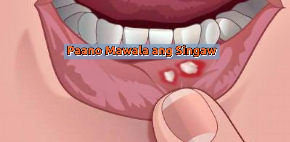 paano mawala ang singaw